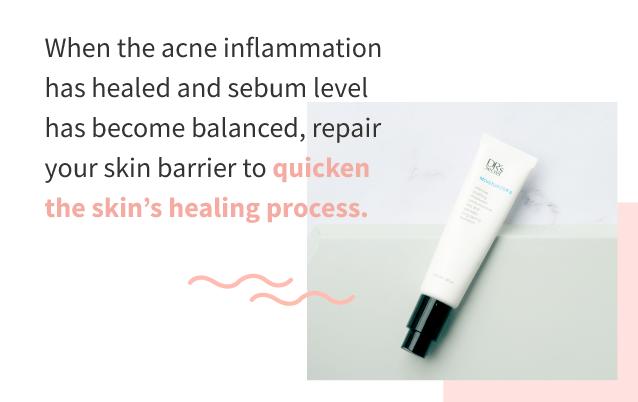 Treat acne - moisturise