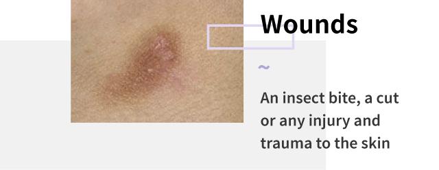 Wounds spots