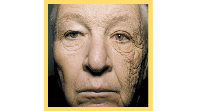 肌膚乾燥缺水