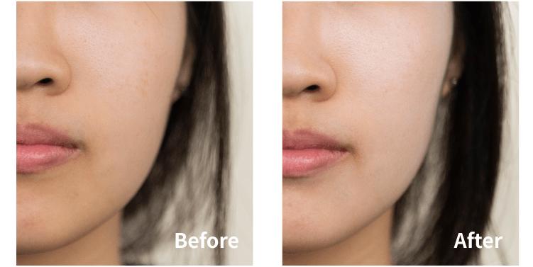 Warm skin tone with sunscreen