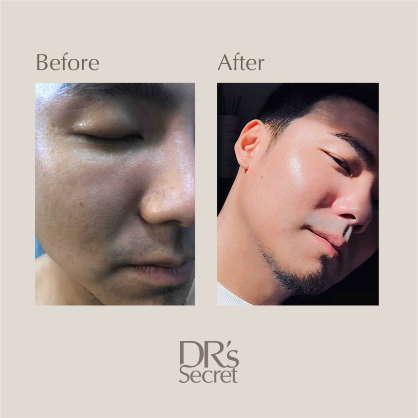 Before and after using DR's Secret