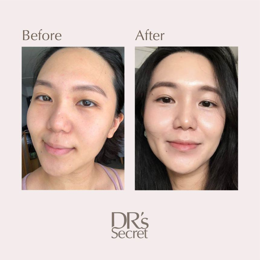 Pheuron before and after foundation-free