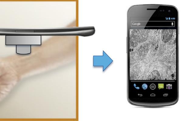 10. Aplicaciones para celulares con Rayos X