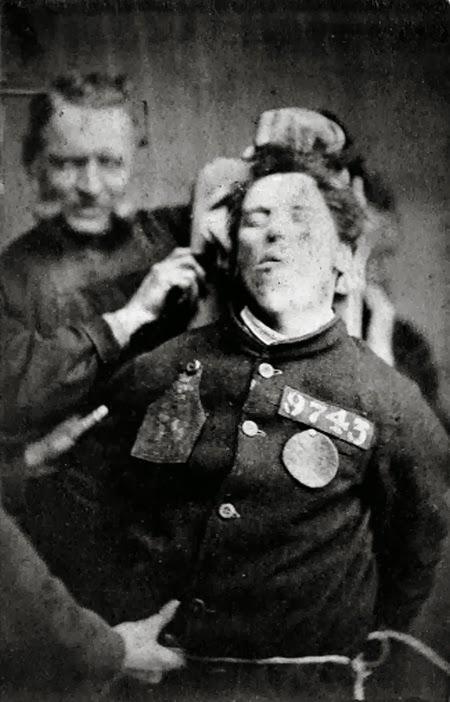 4. Un paciente de un manicomio refrenado por los guardianes