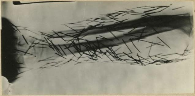 19. Radiografía de un paciente psiquiátrico que se autolesionó clavándose agujas
