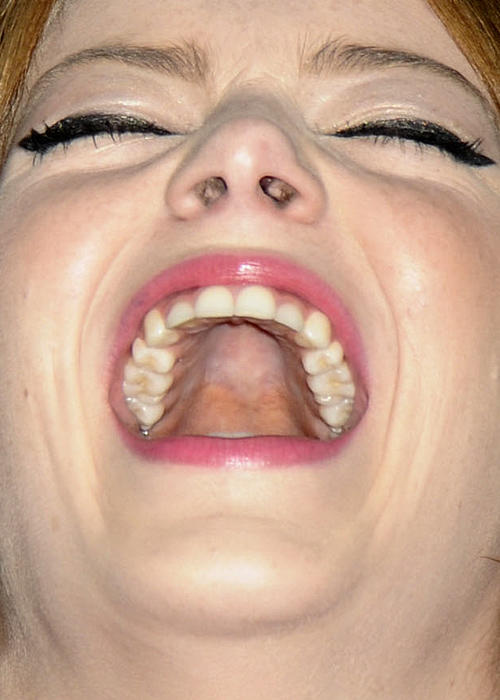 8. Emma Stone (ay... no)