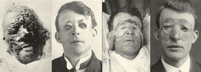 Para mejorar su apariencia, fue intervenido dos veces más. Falleció por causas naturales en 1960