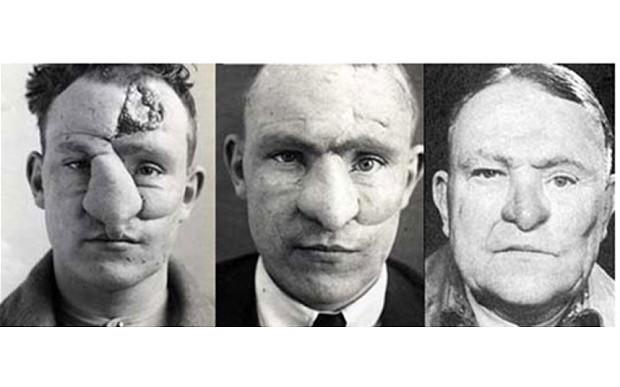 2. William M. Spreckley, una de las primeras operaciones de nariz exitosa (1917)