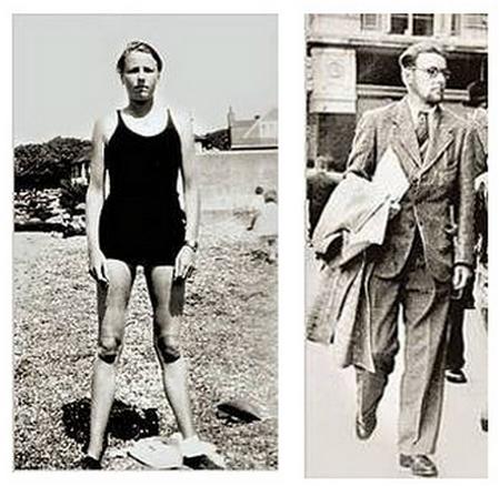 También la primera persona en recibir tratamiento hormonal para redefinir el género, fue sometido a 13 cirugías entra 1946 y 1949