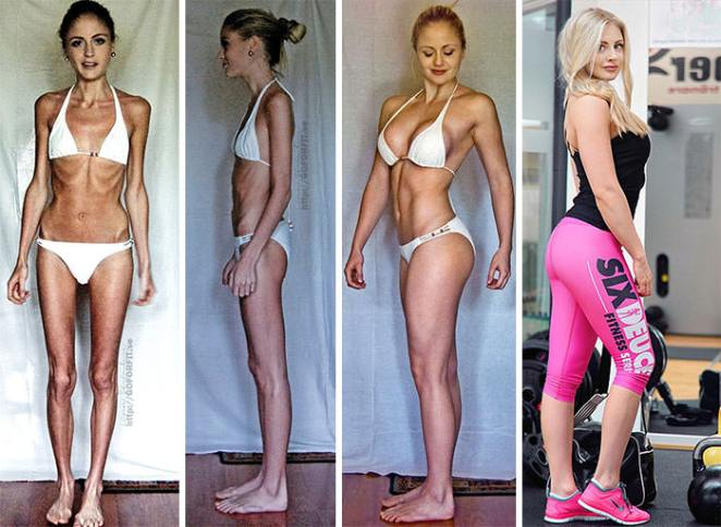 Linn Strömberg,23,Survived On Just 400 Calories A Day And Was In Danger Of Suffering A Heart Attack Before Taking Up Weightlifting