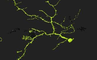 eyewire naming neuron