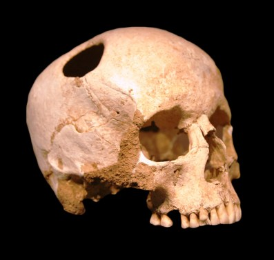 trepanning skull holy shit ow wikipedia, trepanning, wikipedia, neuroscience history