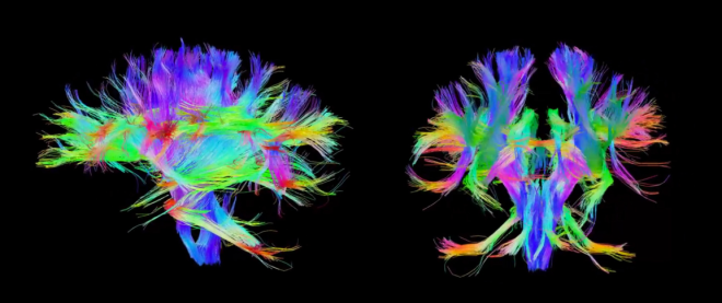 Highways of connectivity inside the brain, connecting cell populations with one another across various timescales. Images: Human Connectome Project via the Institute for Neuroimaging and Informatics' YouTube Channel.