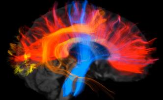 brain in 3D, DTI