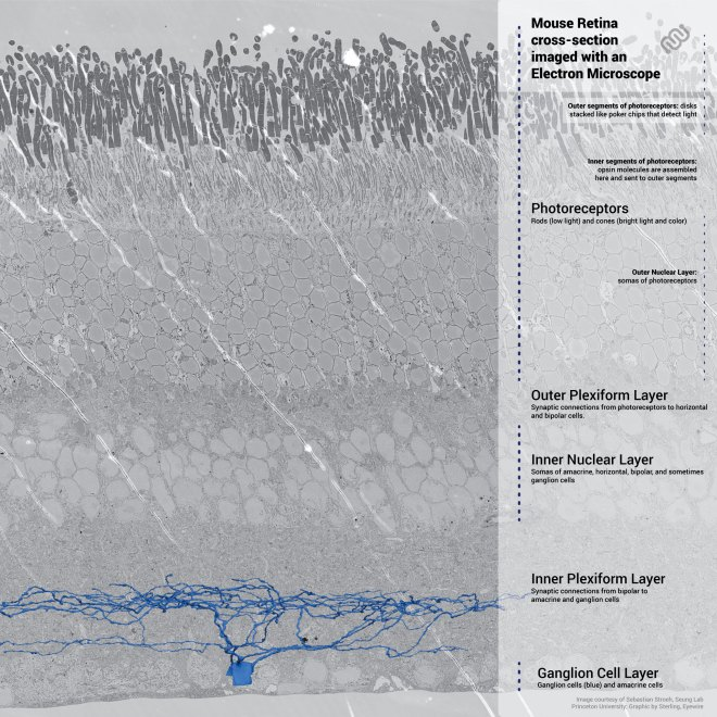 retina, neuroscience, science, eyewire, sebastian stroeh, electron microscope, microscopy, EM, SEM, rods, cones, photoreceptors, amacrine cells, horizontal cells, bipolar cells, ganglion, ganglion cells, cells