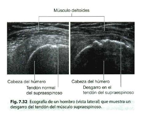 lesion hombro