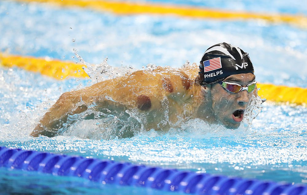 michael-phelps-cupping