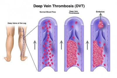 Stop the Clot – Leveraging EMR Embedded Clinical Decision Support to Decrease VTE Complications