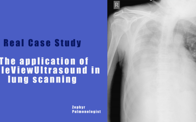Real Case Study- The application of EagleViewUltrasound in lung scanning