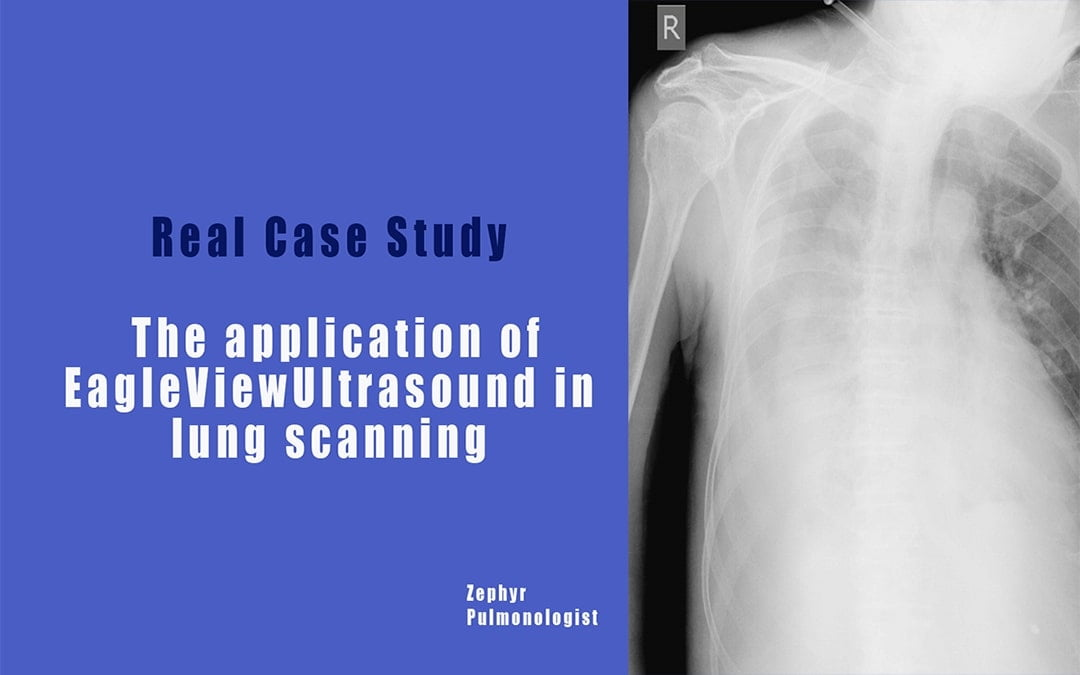 Real Case Study- The application of EagleView Ultrasound in lung scanning