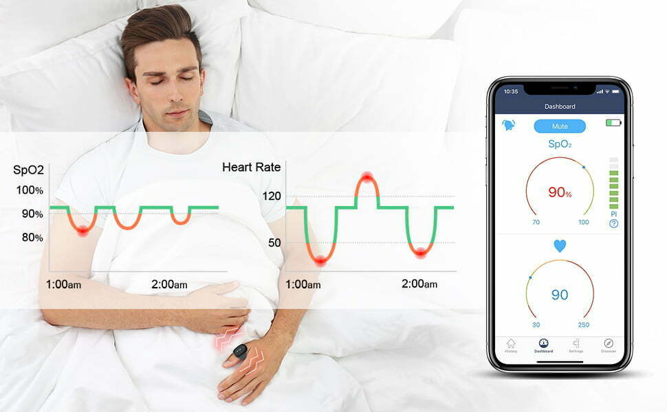 Wellue o2ring pulse oximeter