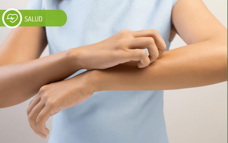 Qué es la Psoriasis y cómo tratarla
