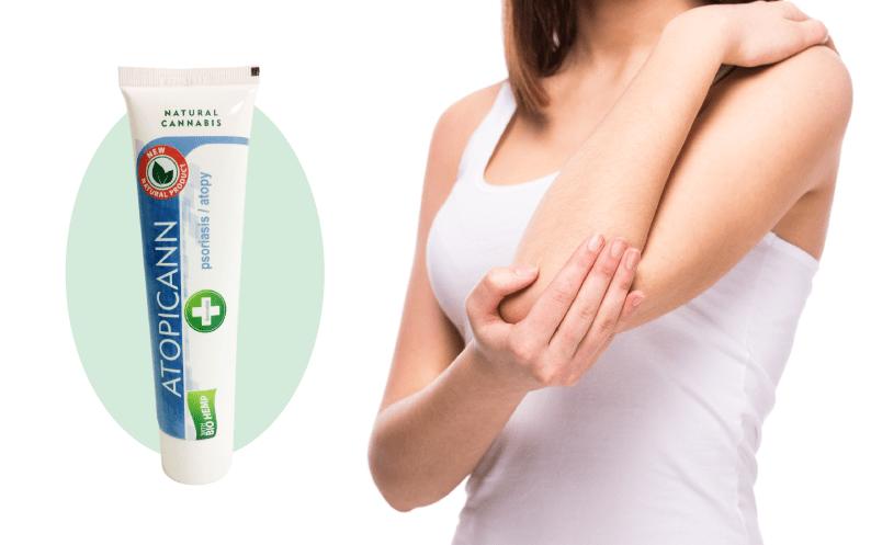 Atopicann, el nuevo tratamiento natural para la psoriasis