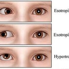 Eyes that drift inward or outward, consistently or inconsistently, warrant assessment by a developmental optometrist.