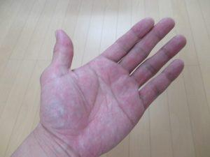 マッサージ師の手