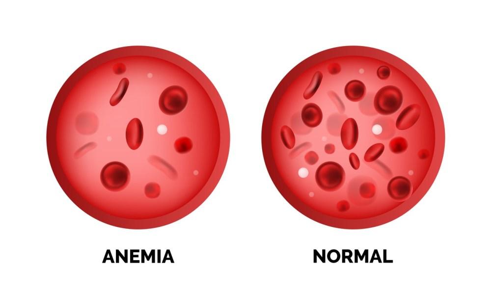 Quadro comparativo com a quantidade de glóbulos vermelhos em uma célula com anemia e uma normal