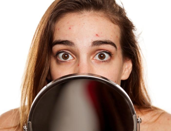 causes pimples
