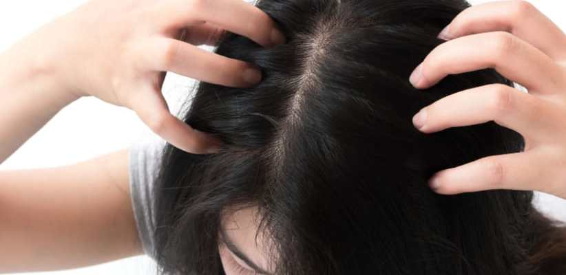 itchy scalp remedies home