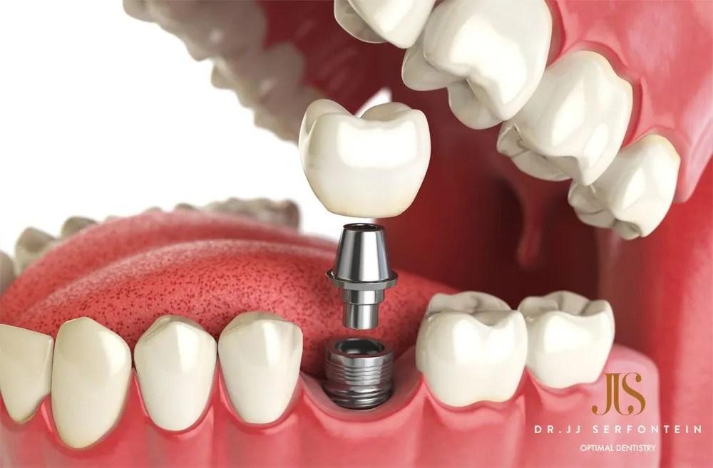 Implants – A permanent solution