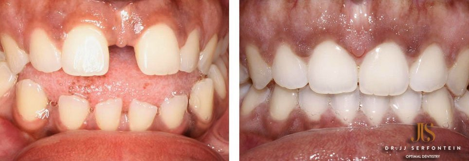 Got Gaps? Get rid of them with Invisalign