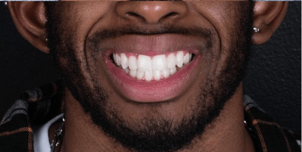 Smile makeover: A patient case study