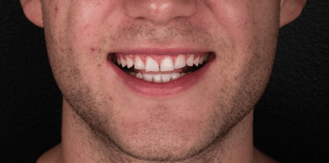 How to deal with tooth wear