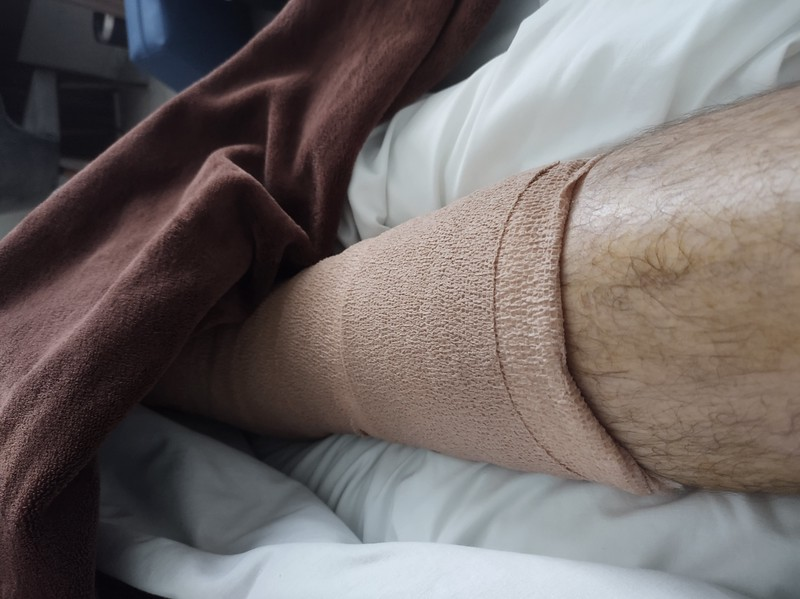 Picture of a bandaged leg.