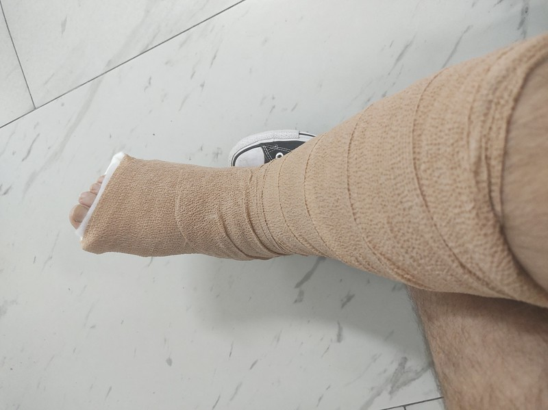 Picture of a leg in a fibreglass cast covered in bandage.