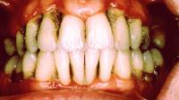 Pengobatan Pada Periodontitis