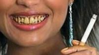 Pengaruh Rokok pada Kesehatan Gigi dan Mulut