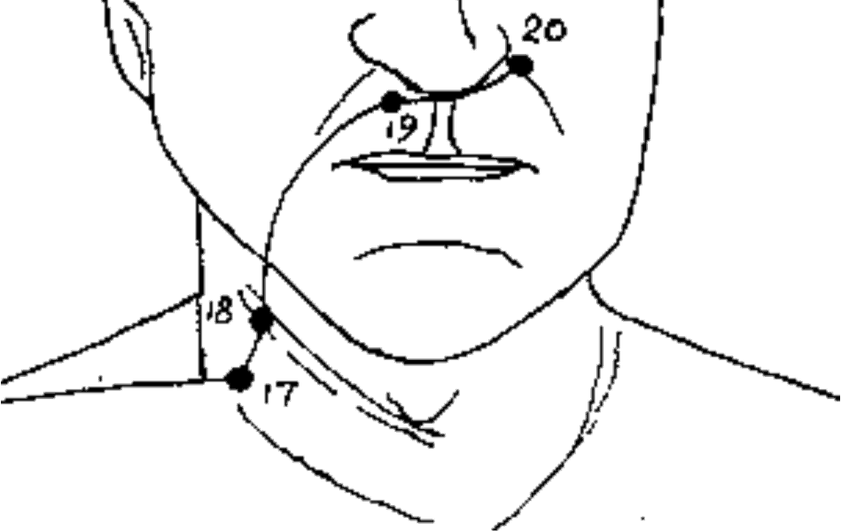 Pressure Point LI-20 [Large Intestine]