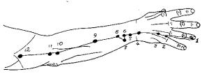 TW-11 Painful Arm Pressure Points