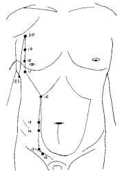 Kyusho Special Alarm Points - Advanced Pressure Points Knowledge