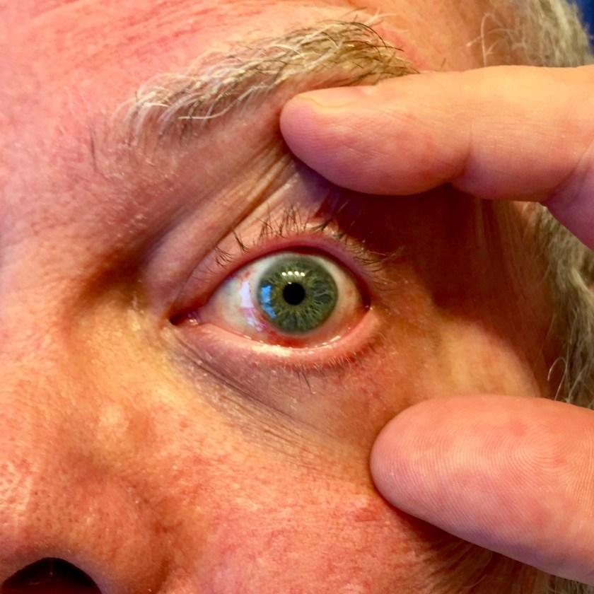 eye bruising