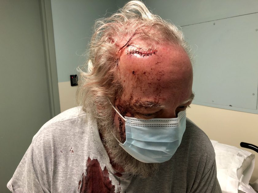 Freshly-stitched forehead