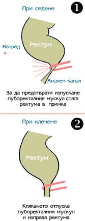 puborectal_sling