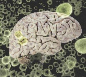 brain-and-bacteria