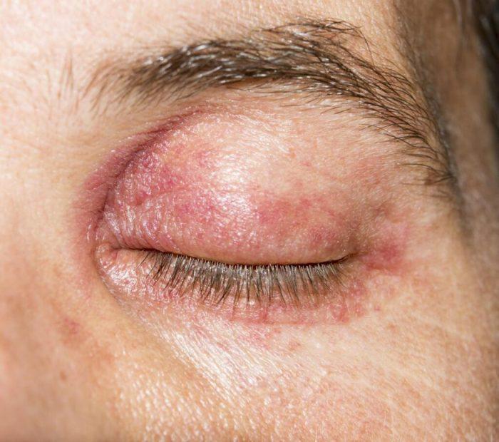 Infeksi kelopak mata