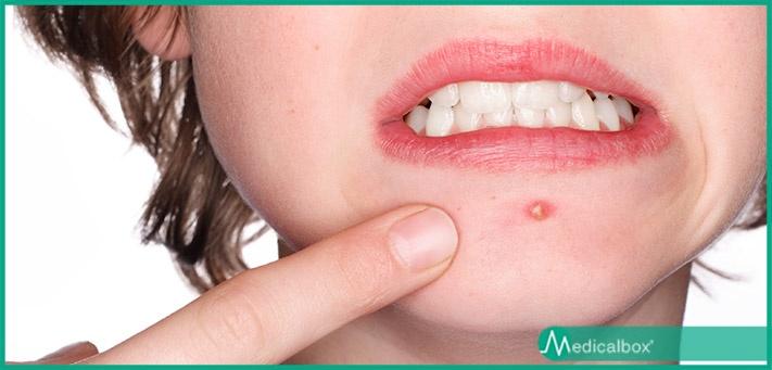 acne_2.jpg