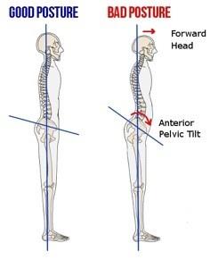 Good posture and bad posture